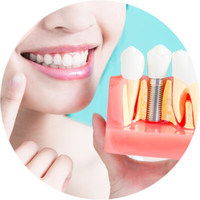 Dental Implants photo