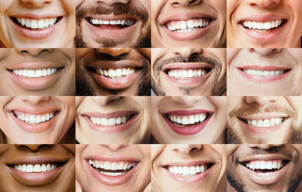 Variety of Smiles photo