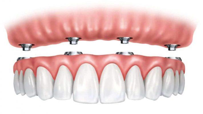 implant Overdenture Cartoon