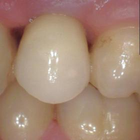 Implant Single Crown